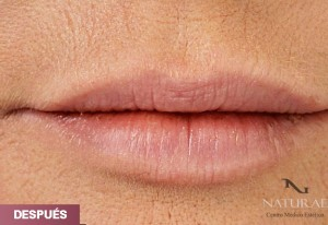 labios despues