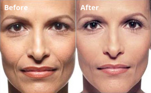 before-after-facial-filler-photo